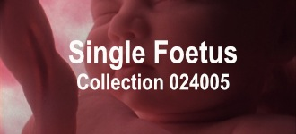 Single Baby Collection 024005