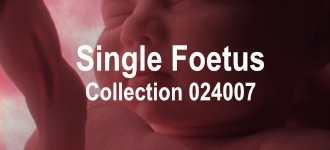 Single Baby Collection 024007
