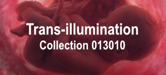 Trans-illumination 36 Collection 013010